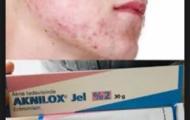aknilox jel nasil kullanilir 2